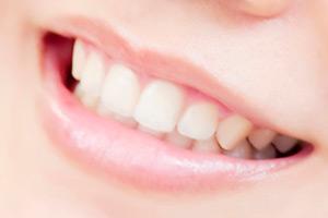 神奈川 短期 歯並び